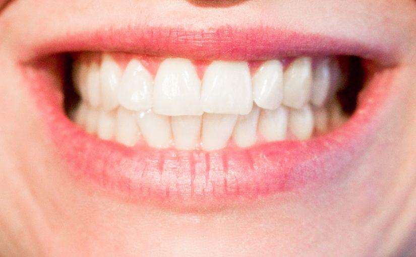 Obecna technika stosowana w salonach stomatologii estetycznej zdoła sprawić, że odzyskamy śliczny uśmiech.